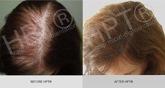HPT® for female hair loss