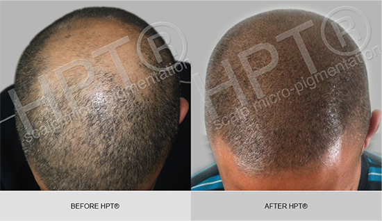 HPT® for male pattern baldness
